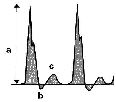 grafic semnal doppler
